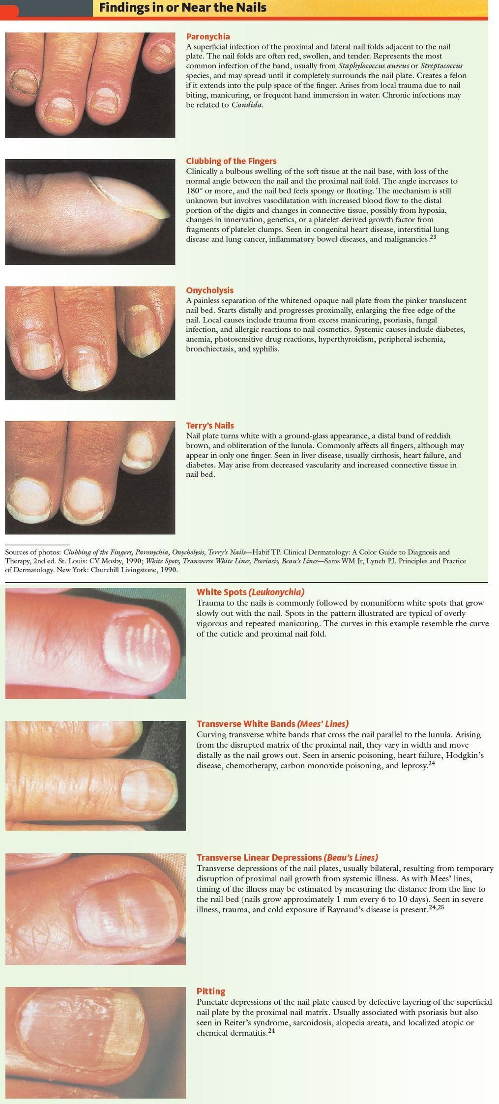 Overview of Nail Disorders - Skin Disorders - MSD Manual