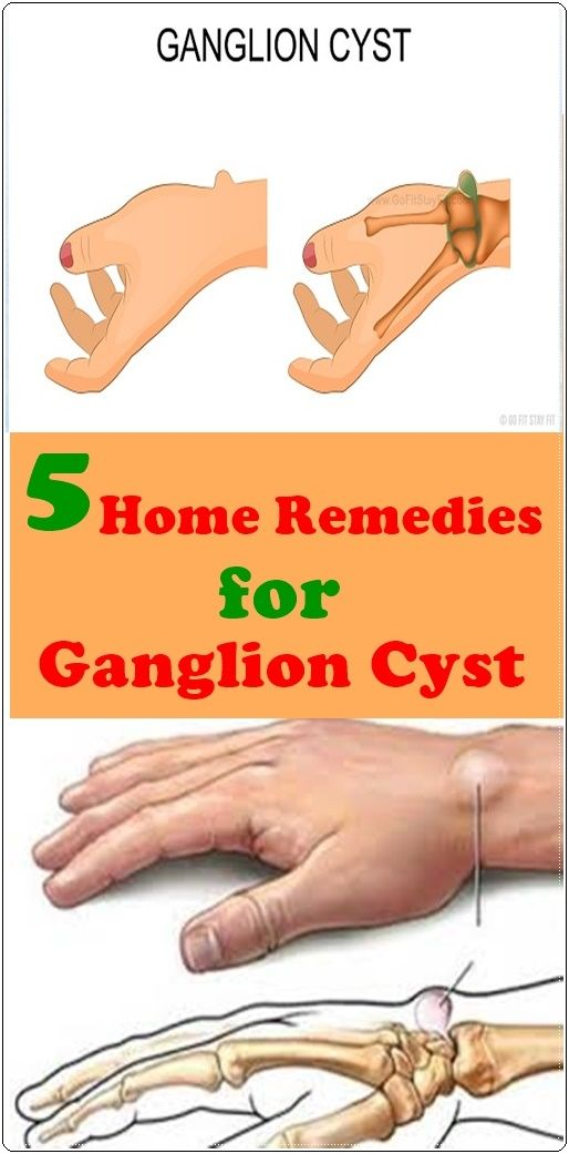 5 HOME REMEDIES FOR GANGLION CYST   Pineverest   Home remedies for