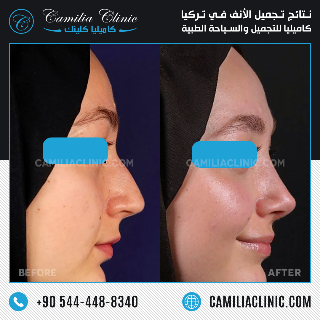 Nose Reshaping Before After In Istanbul Turkey Nose Reshaping Plastic Surgery Nose