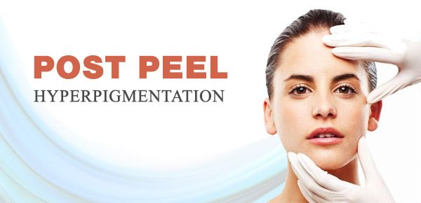 post peel hyperpigmentation what causes it how to avoid it and how to treat it if it does. Black Bedroom Furniture Sets. Home Design Ideas