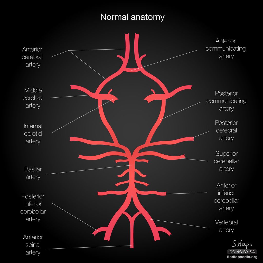 Common variants of the circle of Willis: diagrams | Radiology Case ...