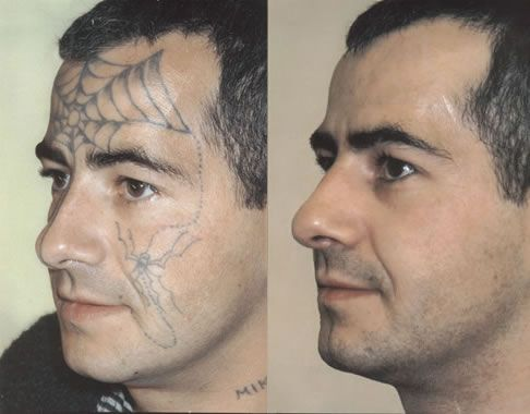 Tattoo Removal At Home Remedies photos | Laser tattoo ...
