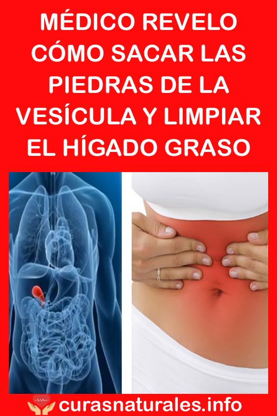 Médico Revelo Cómo Sacar Las Piedras De La Vesícula Y Limpiar El Hígado Graso Beauty Body Healthy Body