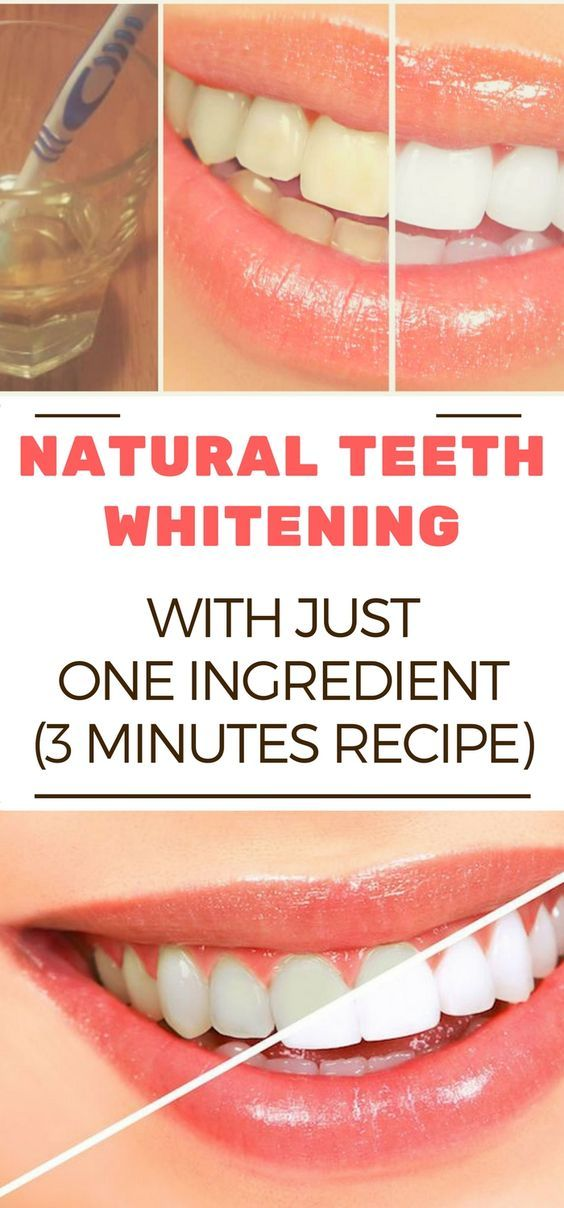 NATURAL TEETH WHITENING WITH JUST ONE INGREDIENT (3 MINUTES RECIPE)  #lifestyle  #solution