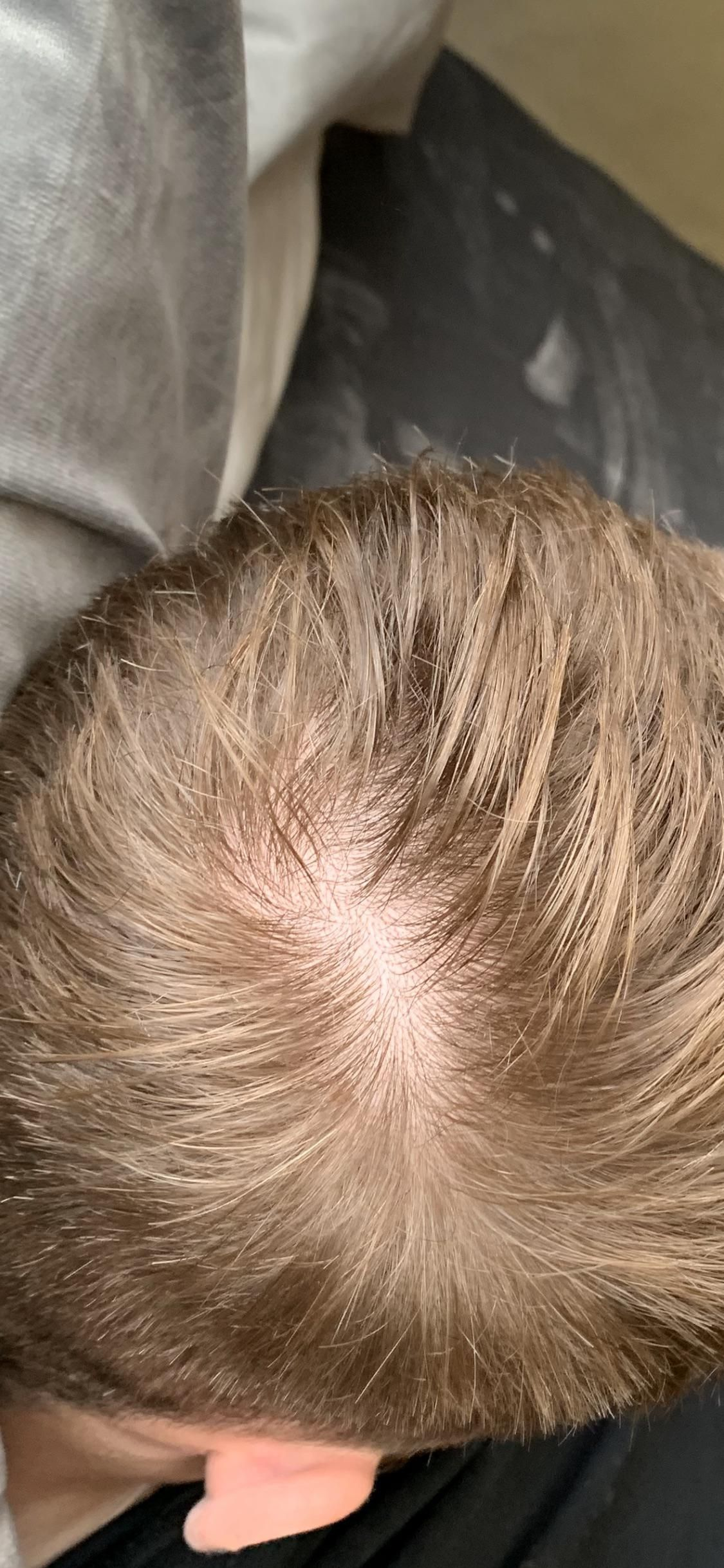 Am I Balding Ive Always Thought I Had A Thin Crown But After Taking A Few Pictures And People Joking About Me Going Bald I Am I Balding Going Bald Hair