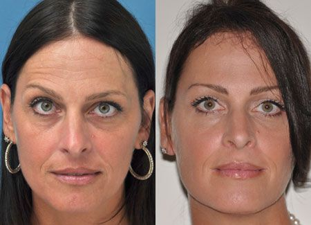 Do Lesser Accepted Facelift Exercises Work For Rubbing Away Wrinkles And Toning Faces