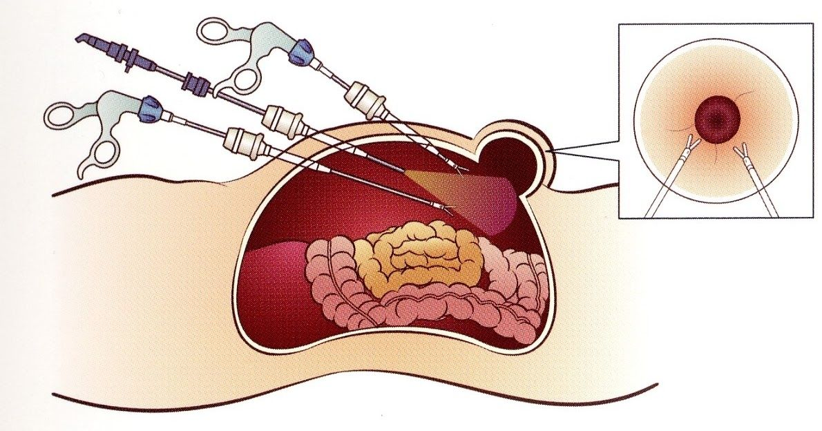 علاج جرثومة المعدة Treatment Stomach Germ