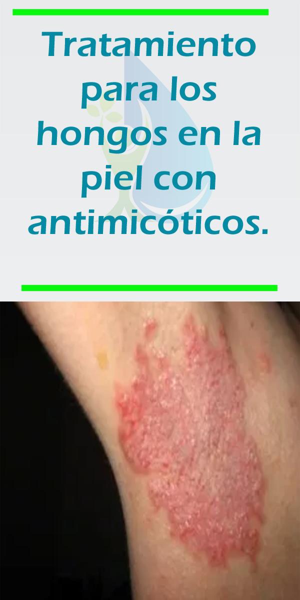 sintomas de los hongos en la piel
