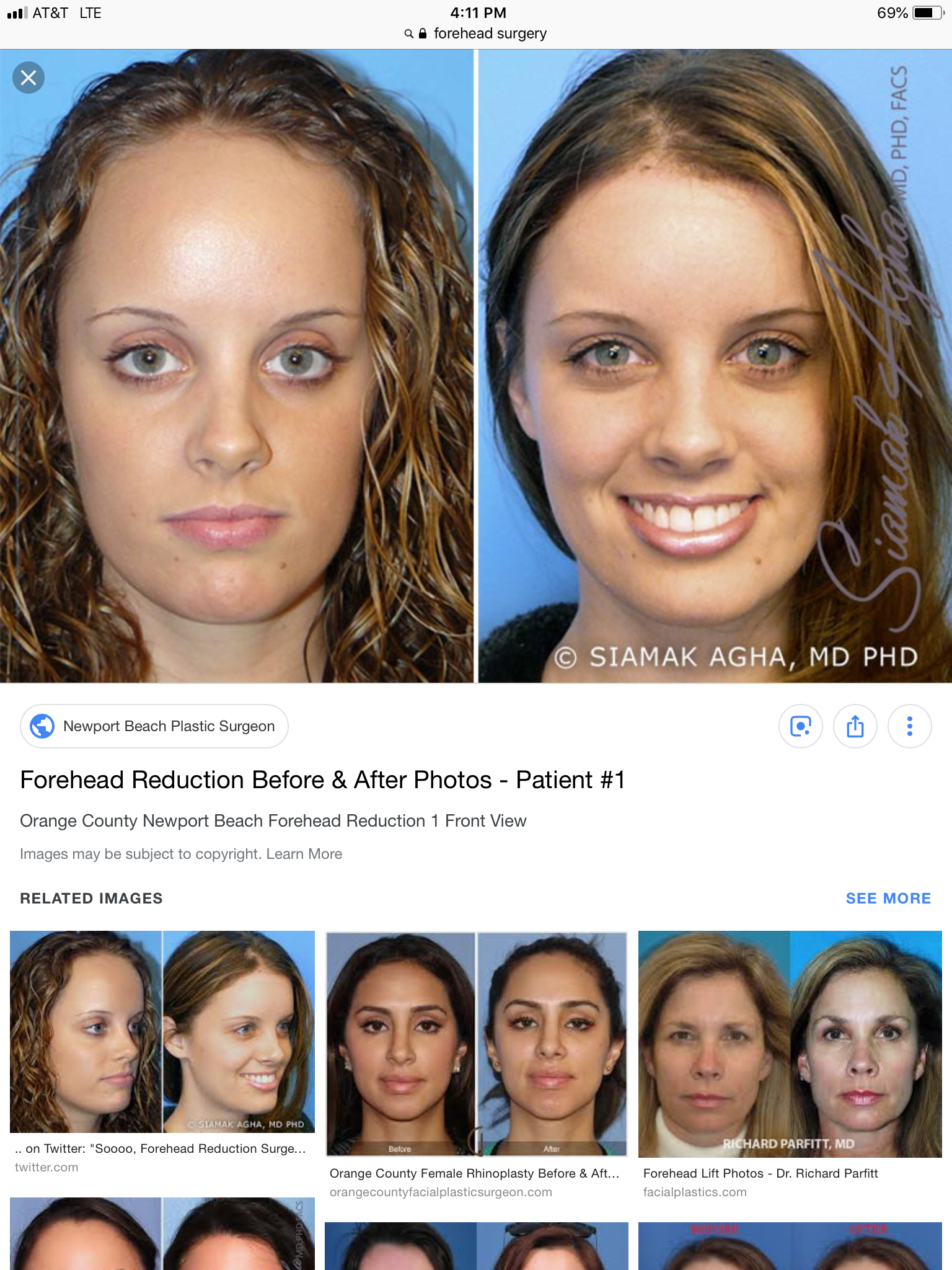 Pin By Sierra Hunt On Cosmetic Forehead Reduction Forehead Reduction Surgery Plastic Surgery