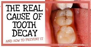 The 25 Best Tooth Decay Images Ideas On Pinterest Heal