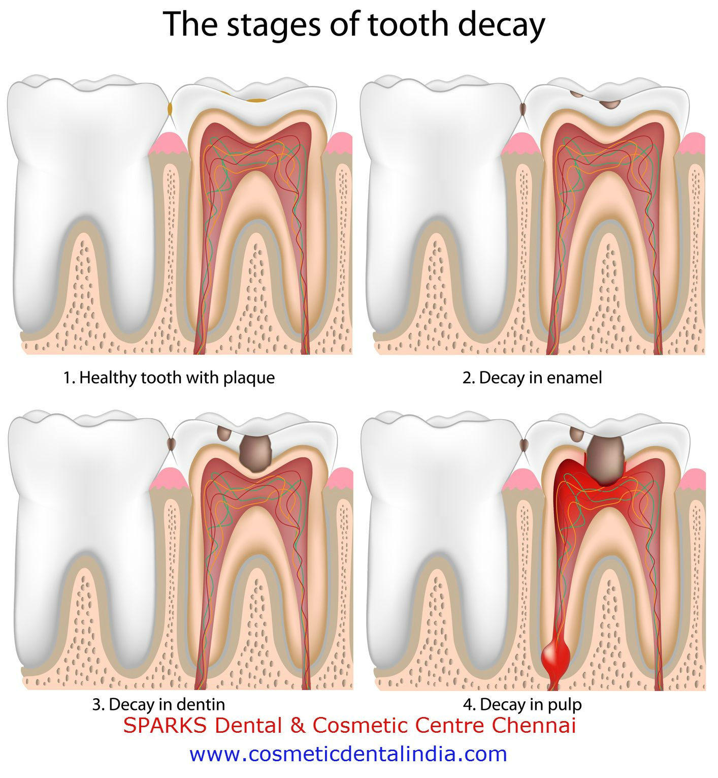 The Stages of Tooth Decay #Dental & #skin problems visit  Sparks Dental centre chennai
