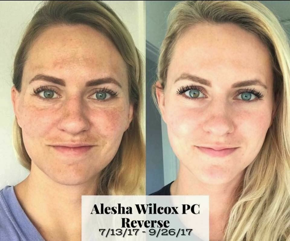 Got An Uneven Skin Tone Dark Spots Or Patches What About Sun Damage Check Out These Rodan And Fields B Rodan And Fields Reverse Rodan And Fields Uneven Skin