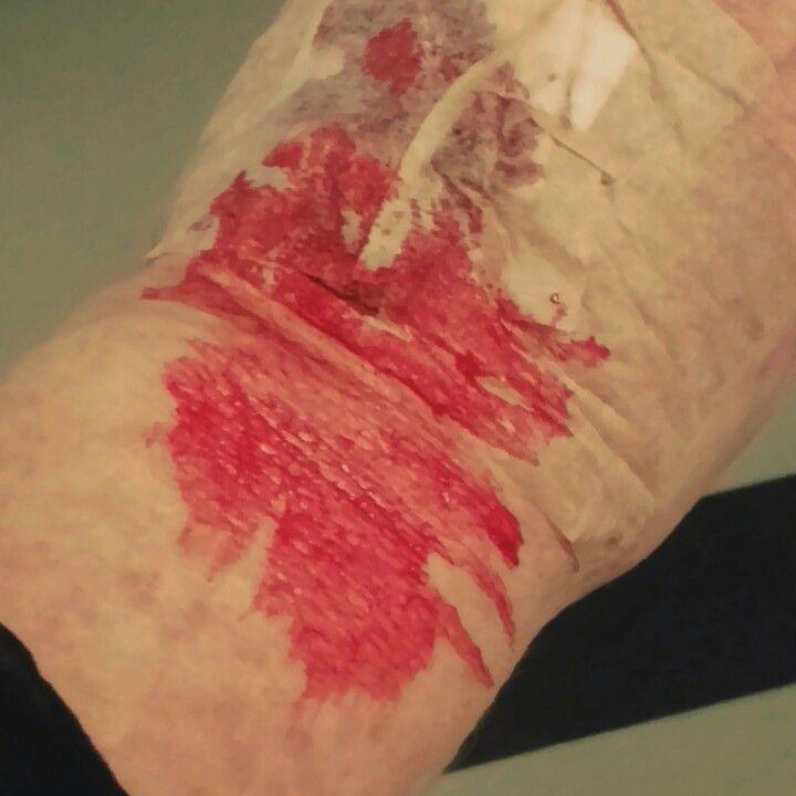 Såhär såg jag ut när jag blev hemskickad från akuten utan hjälp trots högt högt blodtryck och yrsel /nålen slet de ut i korridoren innan jag sparkades ut 😣😣😣😣