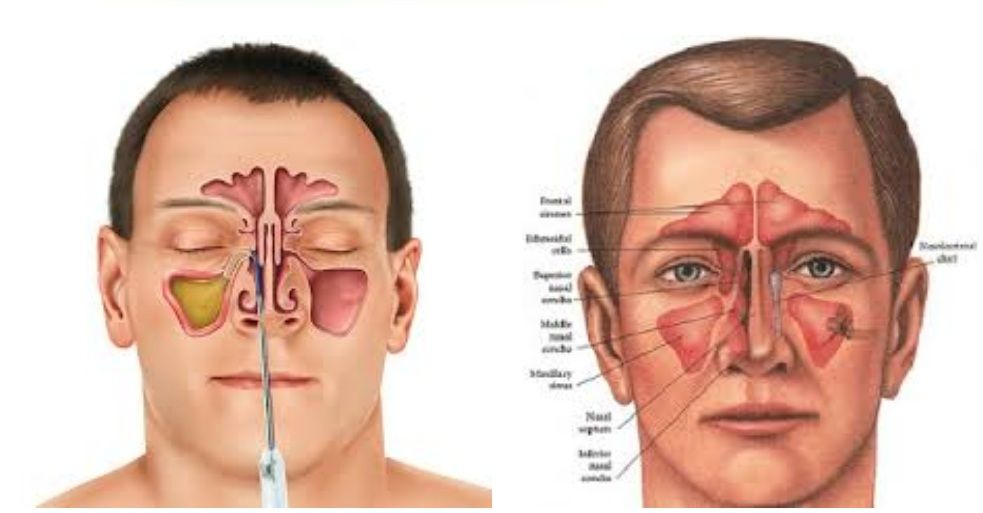 This 100% Natural And Organic Cure Will Kill Sinus Infection | Top ...