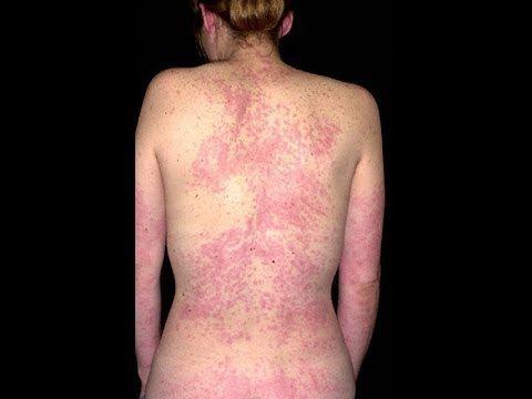 Remedios caseros para reacciones alergicas en la cara