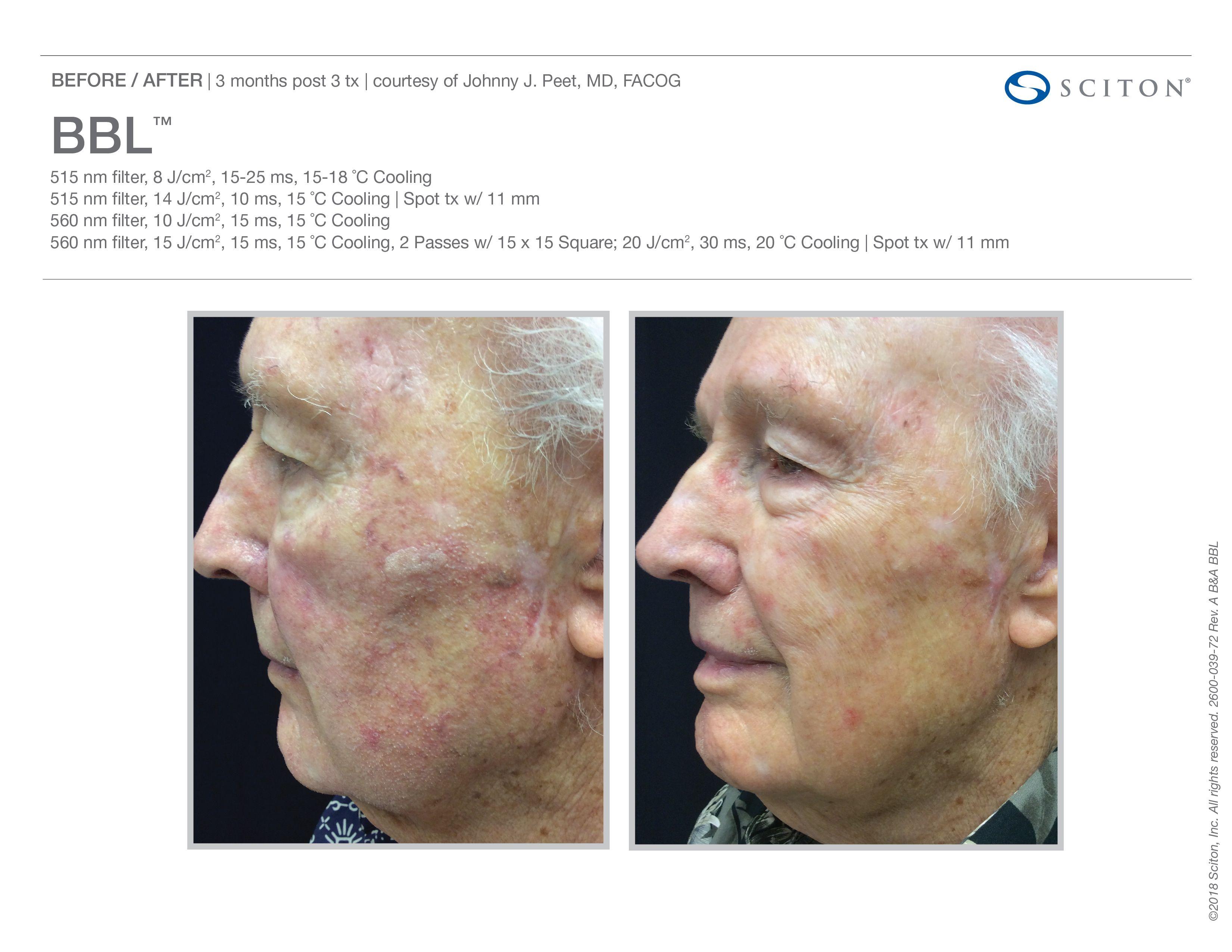 Sciton Bbl 3 Weeks After Treatment Laser Rejuvenation Skin Care Procedures Med Spa