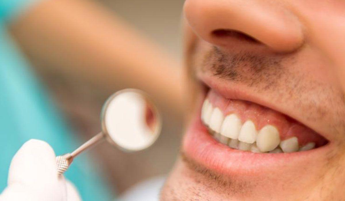 طريقة تنظيف الأسنان In 2020 Nose Ring