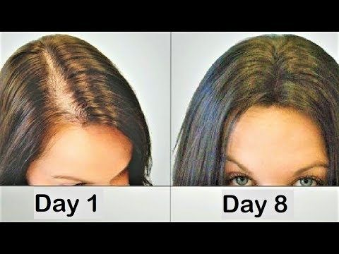 ginger juice for hair loss