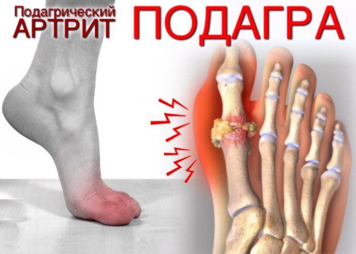 Подагрический артрит симптомы лечение и диета