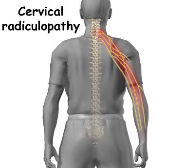 Best 25 Radiculopathy Ideas On Pinterest Neck Pain