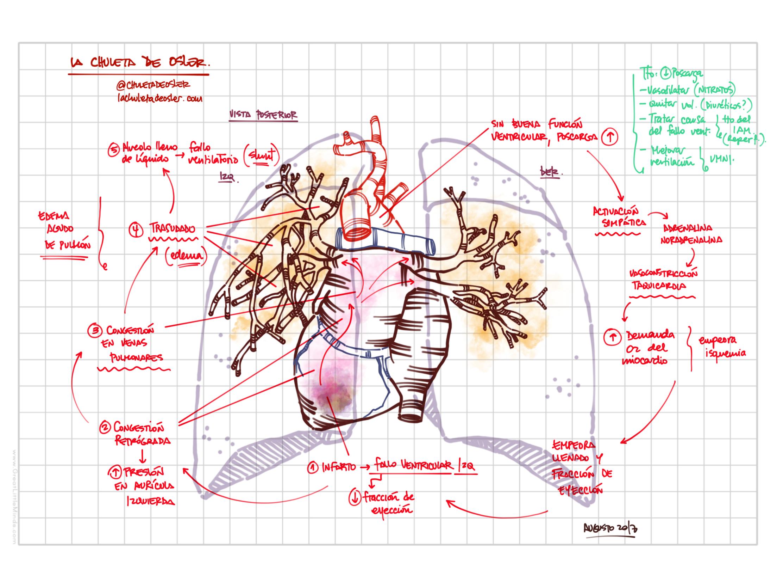 Resumen gráfico de la fisiopatología del edema agudo de pulmón y ...