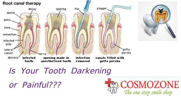#Root canal Treatment removes the damaged pulp and the inside areas are filled and sealed.  For more Details Visit:http://goo.gl/eXtdK6