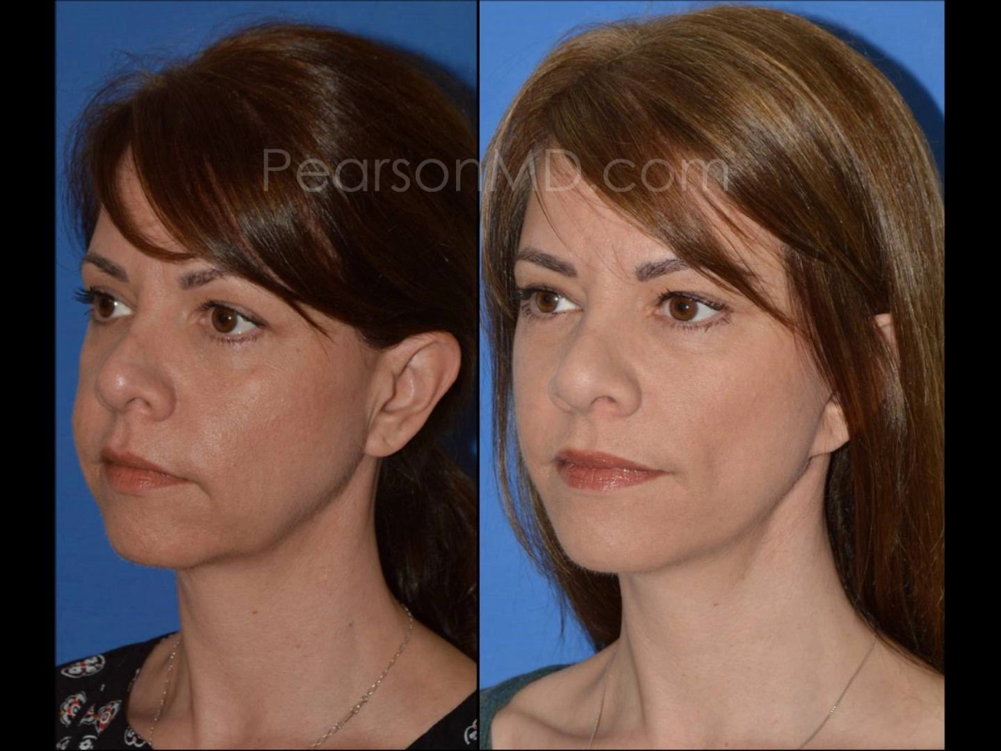 Results Are Demonstrated Following Mid Face Lift And Lower
