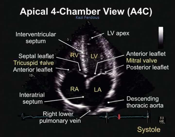 Apical 4 Chamber View TEE | Cardiac surgery | Pinterest | Ultrasound ...