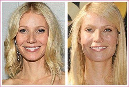 plasticcelebritysurgery.com - Celebrity Plastic Surgery ...