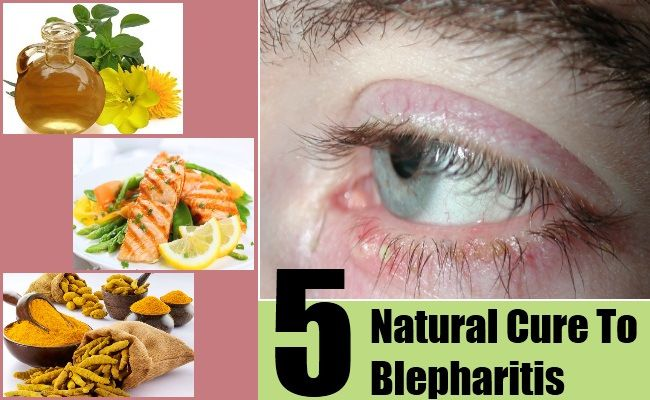 Blepharitis Natural Cures