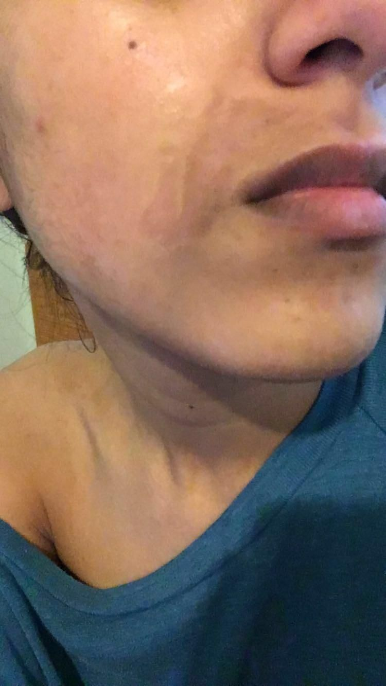 [skin concerns] Skin ripped off from wax 10 days ago