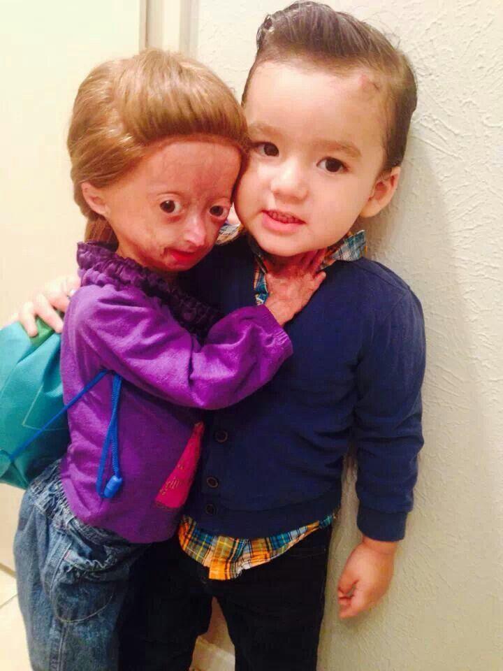 dalia rose  Adalia and her brother. | Love Adalia Rose | Pinterest | Her brother ...