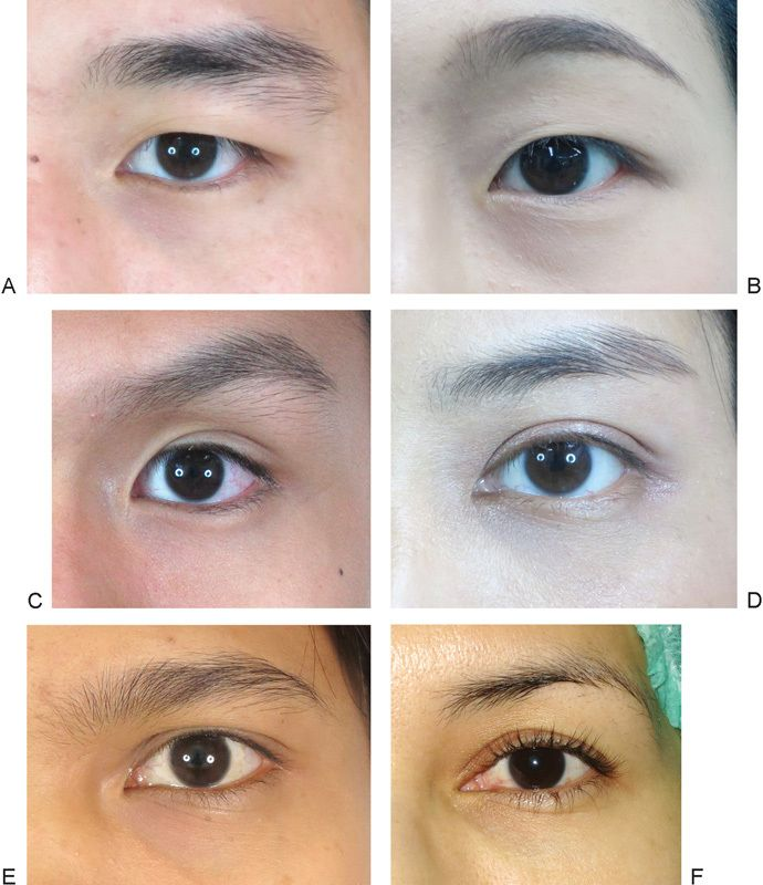 Asian eyelid morphologies are categorized into six types. (A) Single ...