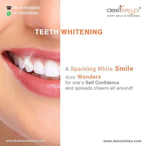 Pin On Teeth Whitening In Hyderabad
