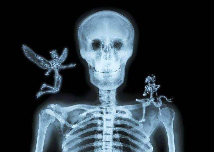 Прикольные картинки про рентген
