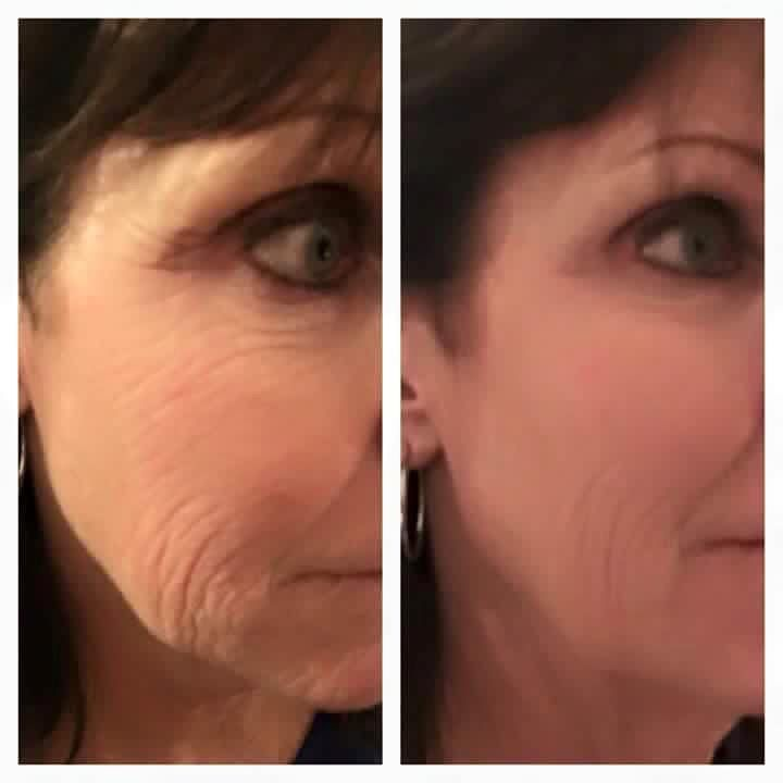 WOW Wipe Out Wrinkles!!!  Take the 90 day challenge and receive my pricing as well as a FREE FACIAL!! Only TWO spots available!!