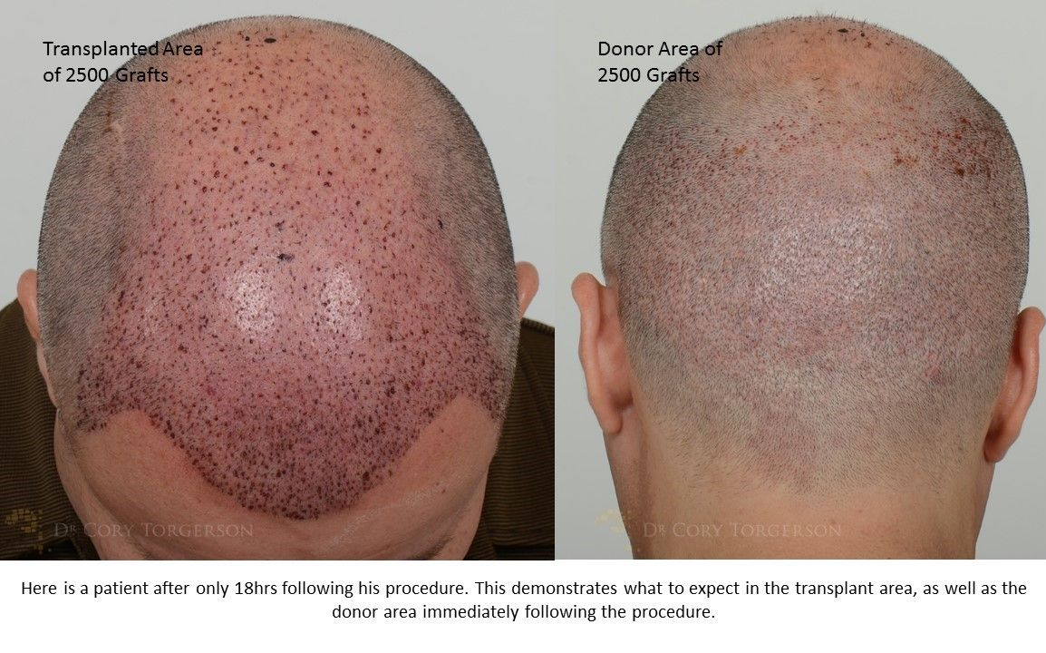TOHairTransplant Clinic hairtransplntTO on Pinterest