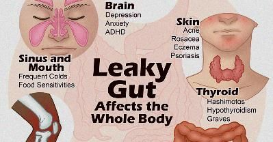 Leaky Gut Candida Cure