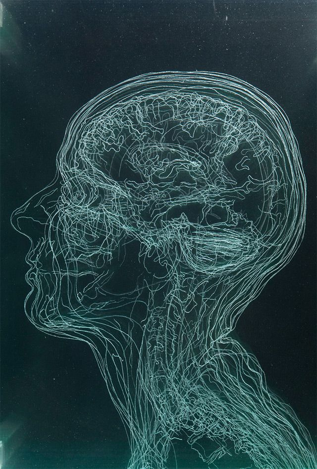 Layered MRI Self-Portraits Engraved in Glass Sheets by Angela Palmer ...