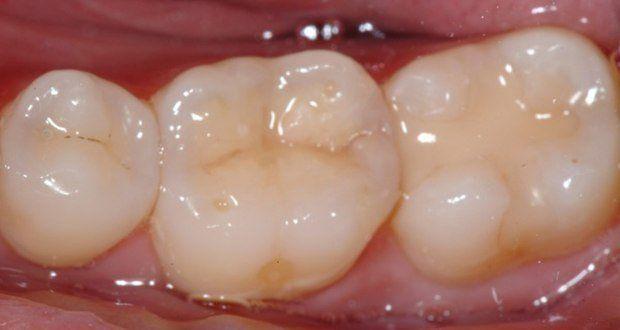 حشوة الأسنان أنواعها و أهم مشاكلها
