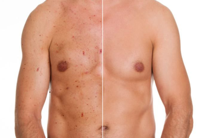 2a0fef5aba6e497ffa836d2c03e32155 - How To Get Rid Of Chest Acne And Scars