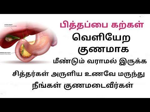 பித்தப்பை கல் குணமாக சித்த மருத்துவம் | pitha pai kal | gall bladder stone siddha tamil - YouTube #gallbladder