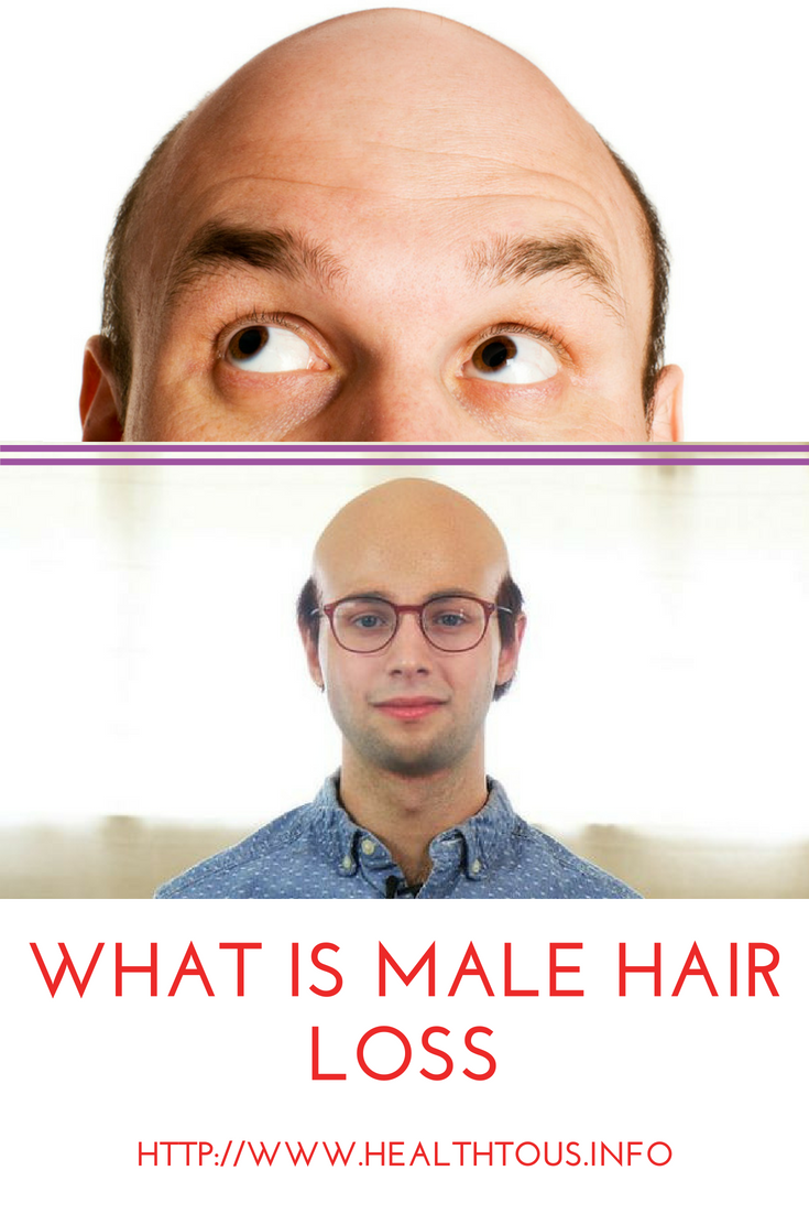 What Is Male Pattern Baldness Simple Inspiration Design