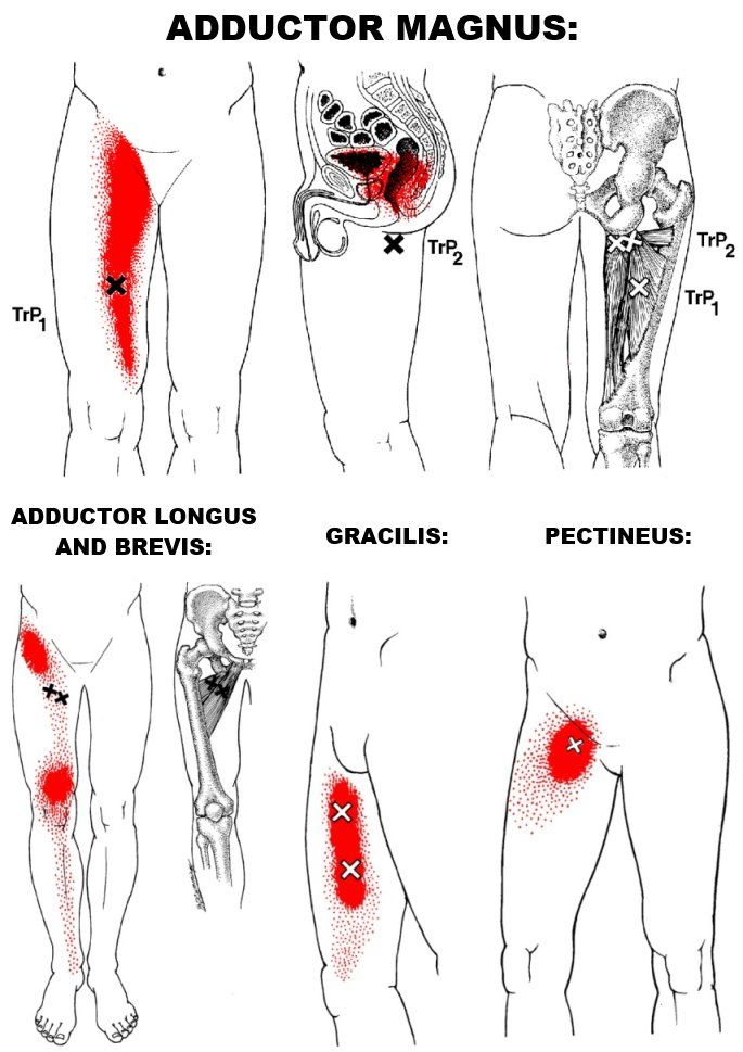The Hip Adductors Are A Group Of 5 Muscles That Make Up