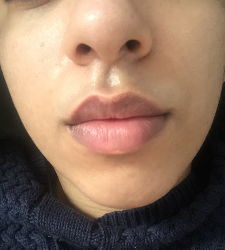 Skin Concerns] Increasing number of fordyce spots on lips