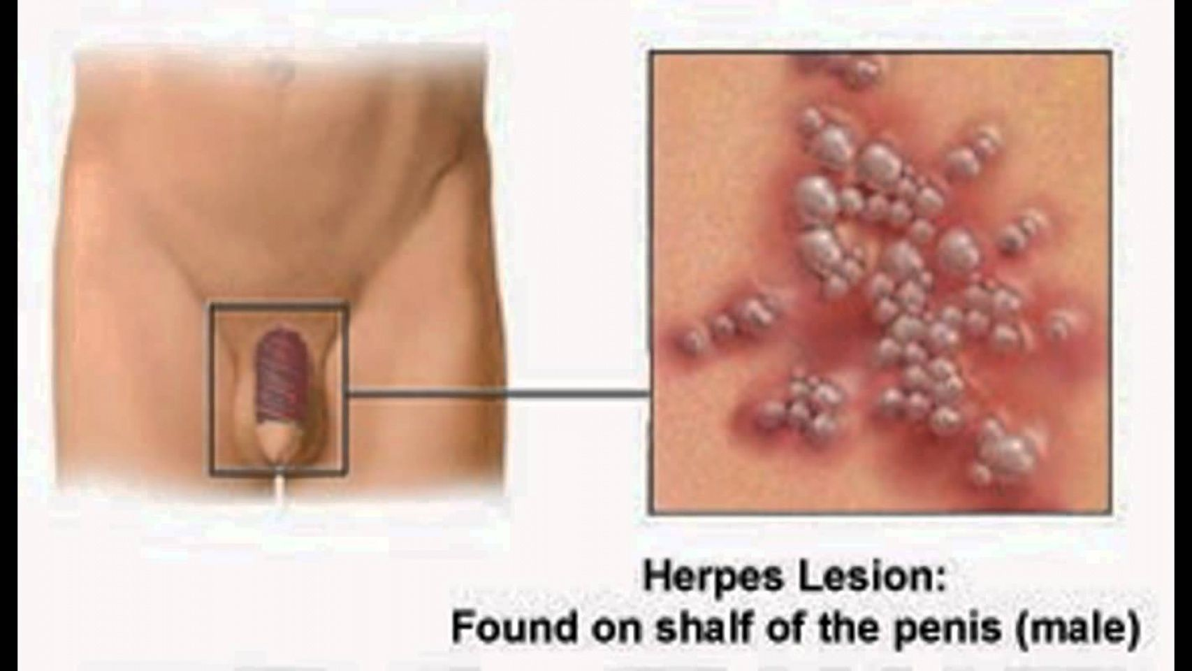 Herpes Sores On The Penis - Blisters Or Sores On Penis -4945