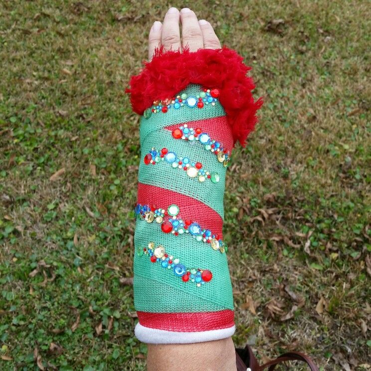 Broken Arm Cast Decor Decoration Bling Christmas Fashion Stuff I