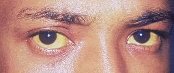 what causes red and yellow eyes