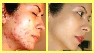 #acne scar removal #back Acne Scar Removal #best Acne Scar Removal #instant Acne Scar…