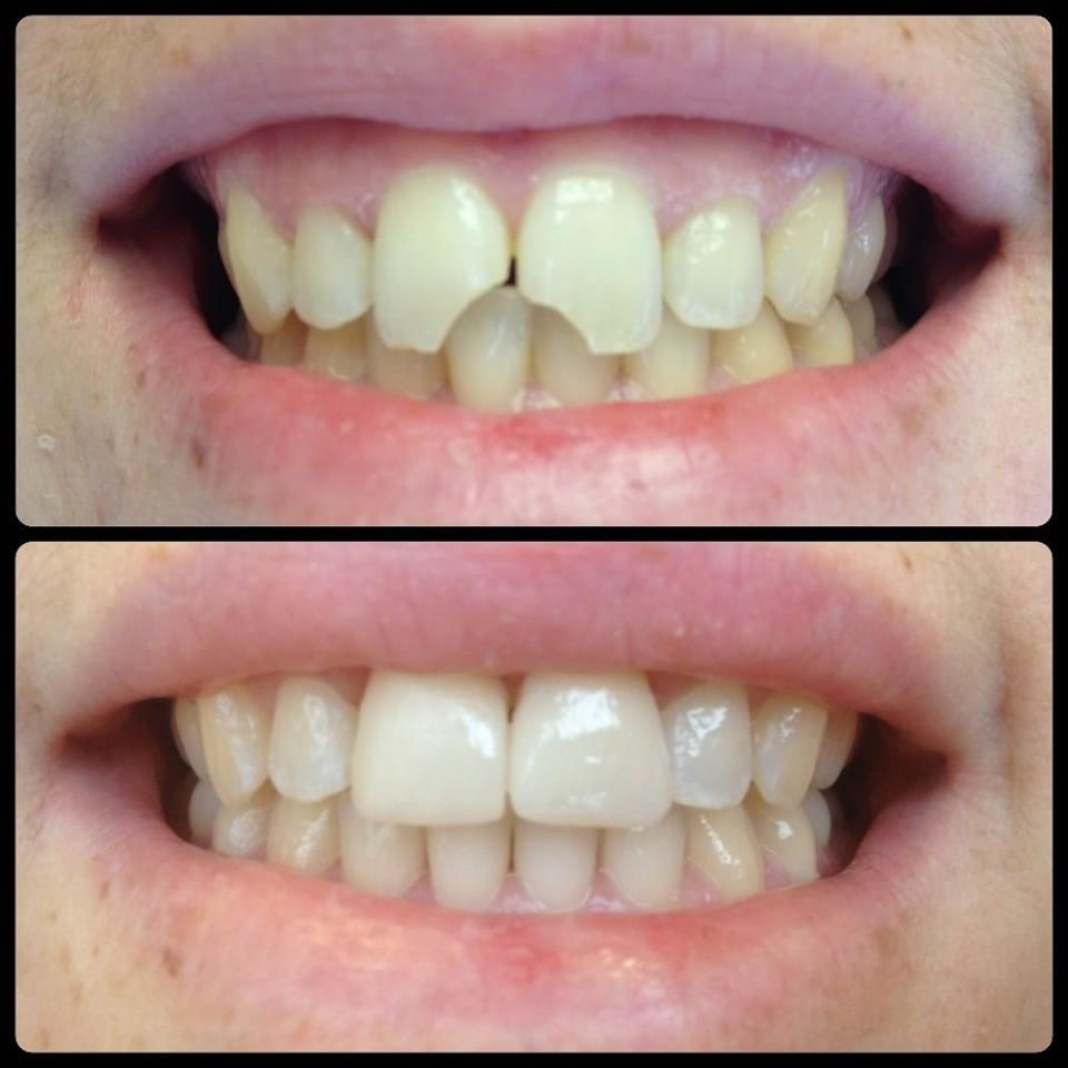 Have a chipped or broken front tooth tired of the